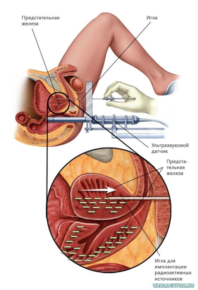 Синдром позвоночной артерии при шейном остеохондрозе лечение симптомы и лечение