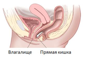 Маленький член выпадает из вагины
